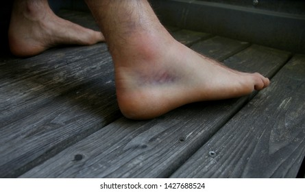 Hematoma Images, Stock Photos & Vectors | Shutterstock