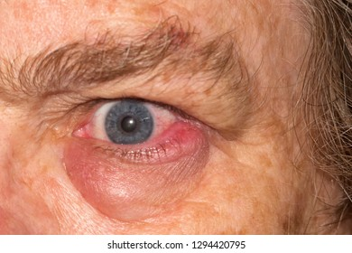 Swollen eye infection on mature woman