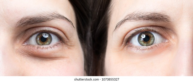 Swollen eye of woman before and after natural treatment to defla