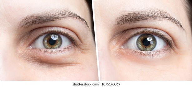 Swollen eye of woman before and after botox treatment