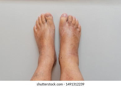 Swollen Ankle Images, Stock Photos & Vectors | Shutterstock