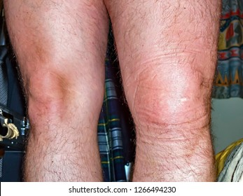 Swollen left knee akter ligament rupture ca 5 hours after the accident.