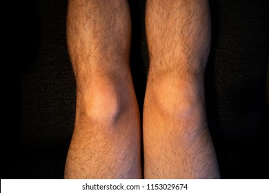 Swollen right knee after injury to ACL ligament, medial meniscus and collateral ligament on male leg