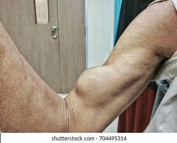 symptom of rupture of biceps tendon  due to hard work . contraction  and show mass in biceps muscle