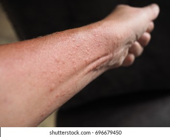 Symptoms of contact allergy on hand's skin. Close up of hives.
