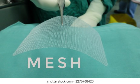 Synthetic Mesh used in Surgical Repair of Hernia.