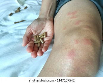 Systemic Lupus Erythematosus(sle) is a disorder of a body's cell causing rashes in patients treated with alternative medicine. The drug is packed in capsules. Many kinds of Chinese herbs.