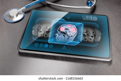 Tablet displaying brain activity scan laying on wooden table