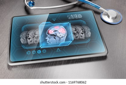 Tablet displaying brain activity scan