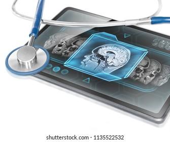Tablet displaying brain scan