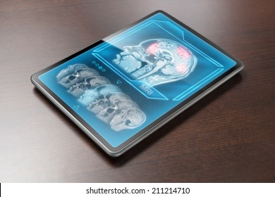 Tablet displaying cerebral activity