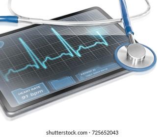 Tablet displaying ECG