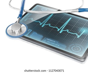 Tablet with ECG data on screen