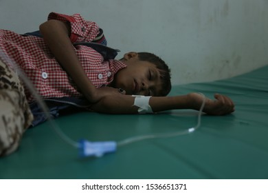 Taiz / Yemen - 31 Jan 2018 : A child suffer from cancer and his condition got worse due to the war and siege imposed on Taiz city,Yemen .