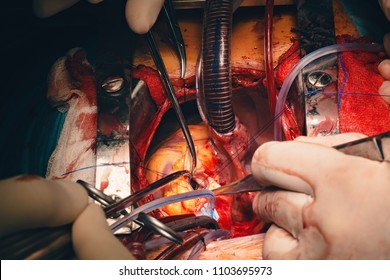 Team of surgeons in operating room. Needle holder or a needle driver in doctor's hand, a surgical instrument or a hemostat, used by surgeons to hold a suturing needle for closing wounds during surgery