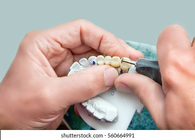 Technical shots of model on a dental prothetic laboratory. Dentist hands with plaster model, electric burr and ceramic dentures