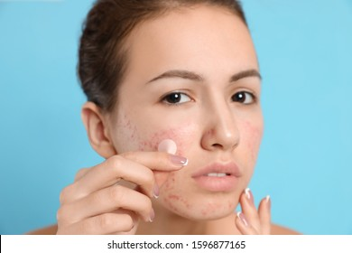 Teen girl applying acne healing patch on light blue background