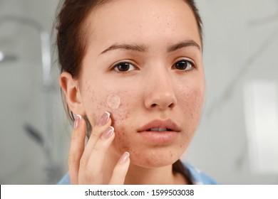Teen girl applying acne healing patch indoors, closeup