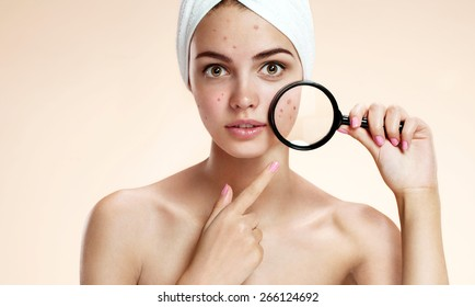 Teen girl with problem skin look at pimple with magnifying glass. Woman skin care concept