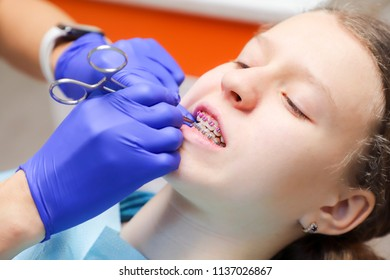 Teenage girl at a dentist's reception. Dental treatment, braces on the teeth.