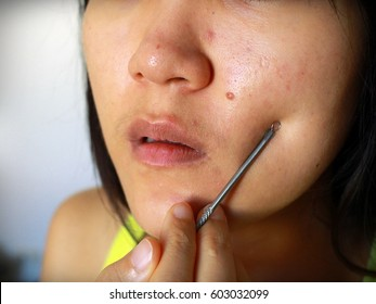 Teenage girl pressing her pimples by herself, removing pimple from her face. Woman skin care concept / photos of ugly problem skin girl, close-up image, soft focus.