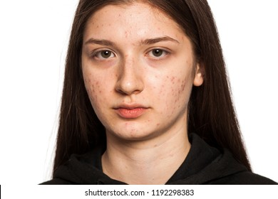 teenage girl with problematic skin on white background