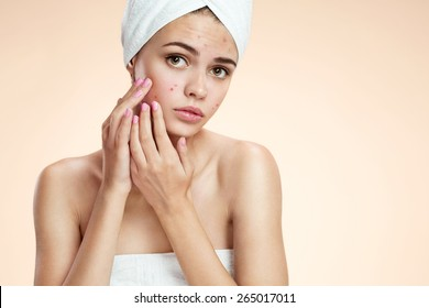 Teenage girl squeezing her pimples, removing pimple from her face.  Woman skin care concept / photos of ugly problem skin girl on beige background