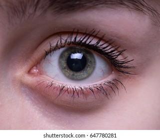 Teenage girl's eye