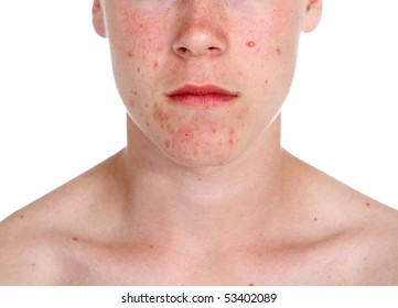 Teenager with Acne