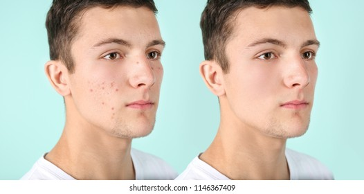 Teenager before and after acne treatment on color background. Skin care concept