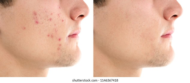 Teenager before and after acne treatment on white background, closeup. Skin care concept