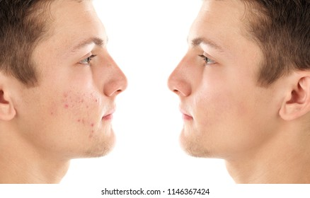 Teenager before and after acne treatment on white background. Skin care concept