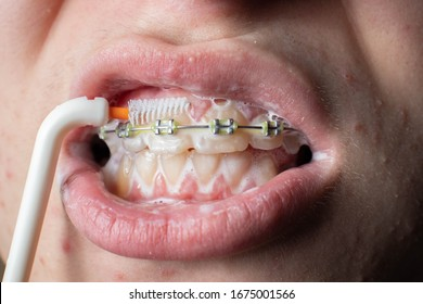 Teenager brushes his teeth with braces. Toothpaste and brush. Close-up. Macro.