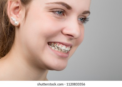 teenager girl with a dental brace
