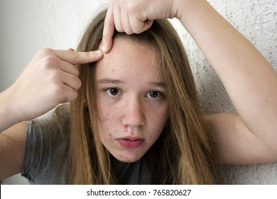 A teenager girl is going through because of acne on her face.A teenager girl experiences that on the face of a pimple.