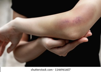 A teenager girl show a big purple bruise on her left arm that is caused by her accidentally fall off from the stairs.