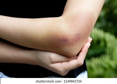 Bruised Arm Images, Stock Photos & Vectors | Shutterstock