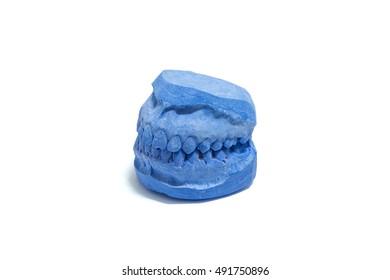 teeth aligner on a dental plaster mold , Print teeth plaster mold