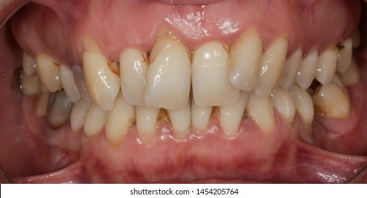 Teeth alignment and malocclusion, intraoral view