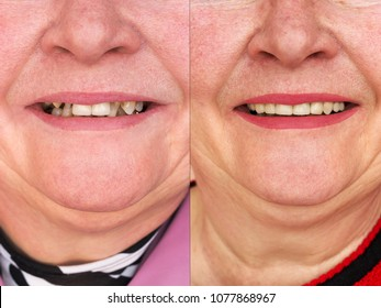 Teeth before and after prosthetics. Smiling woman. Dental practice.