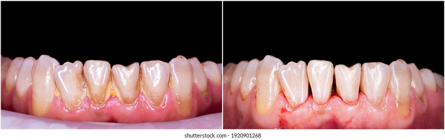 teeth cleaning before and after picture
