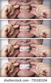 Teeth cleaning gradually from yellow to white - BEFORE and AFTER situations. Dental care