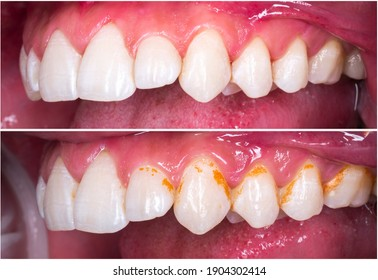 teeth cleaning and whitening before and after picture