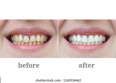Teeth close-up after dental therapy and whitening. Before and after.