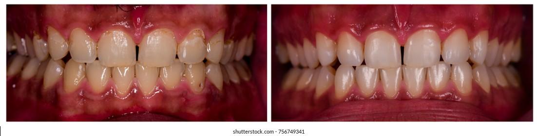 teeth cosmetic restoration