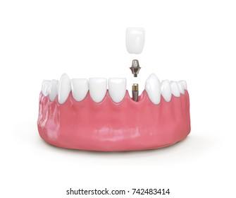teeth dental implant model 3d illustration