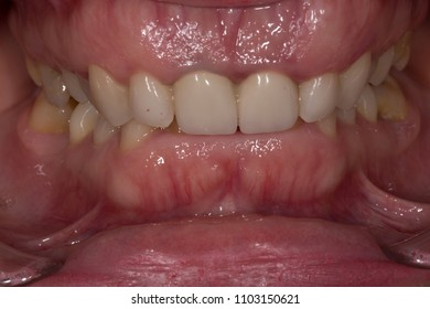 teeth malocclusion,intraoral view
