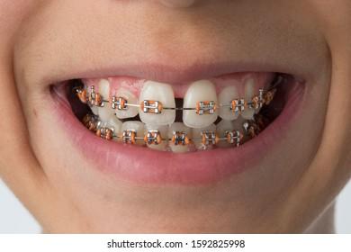 Teeth with metal dental braces close up