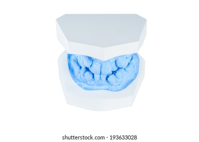 teeth mold on isolated white background