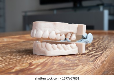 Teeth printed by 3d printer. Upper and lower jaw of adult. Used to create aligners, night guards, braces, crowns, dentures and surgical guides.  The 3D printed teeth model is on a wood table.